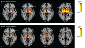 fructose_glucose_brain